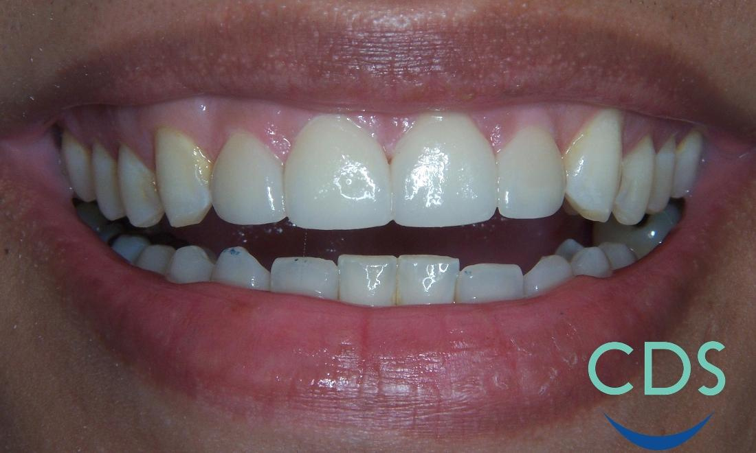 Spaces between teeth fixed with veneers